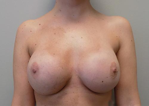 Implant Based Reconstruction