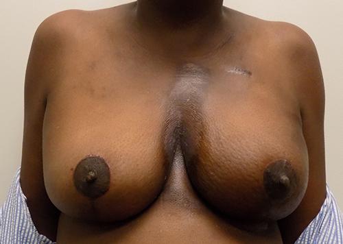 Oncoplastic Breast Surgery